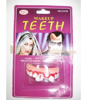 Takma çarpık diş